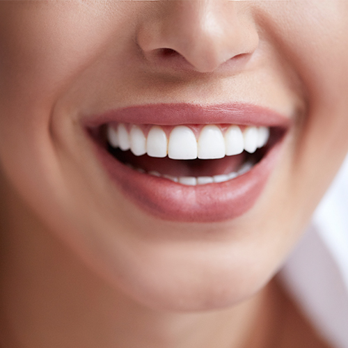 Close up of a woman smiling with white teeth